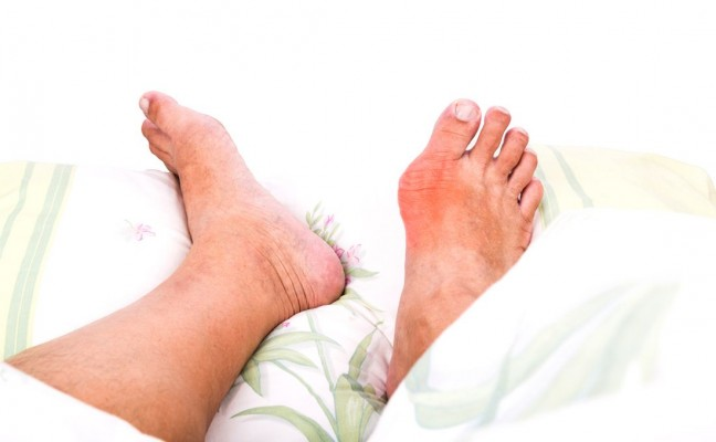 Naturally cure gout