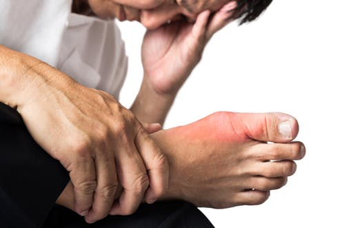 natural cure gout